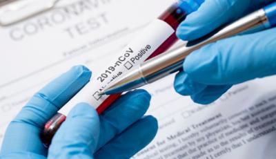 Boletins da semana somam 23 testes negativos para o coronavírus